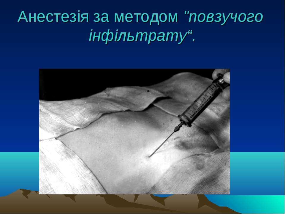 """Анестезія за методом """"повзучого інфільтрату""""."""