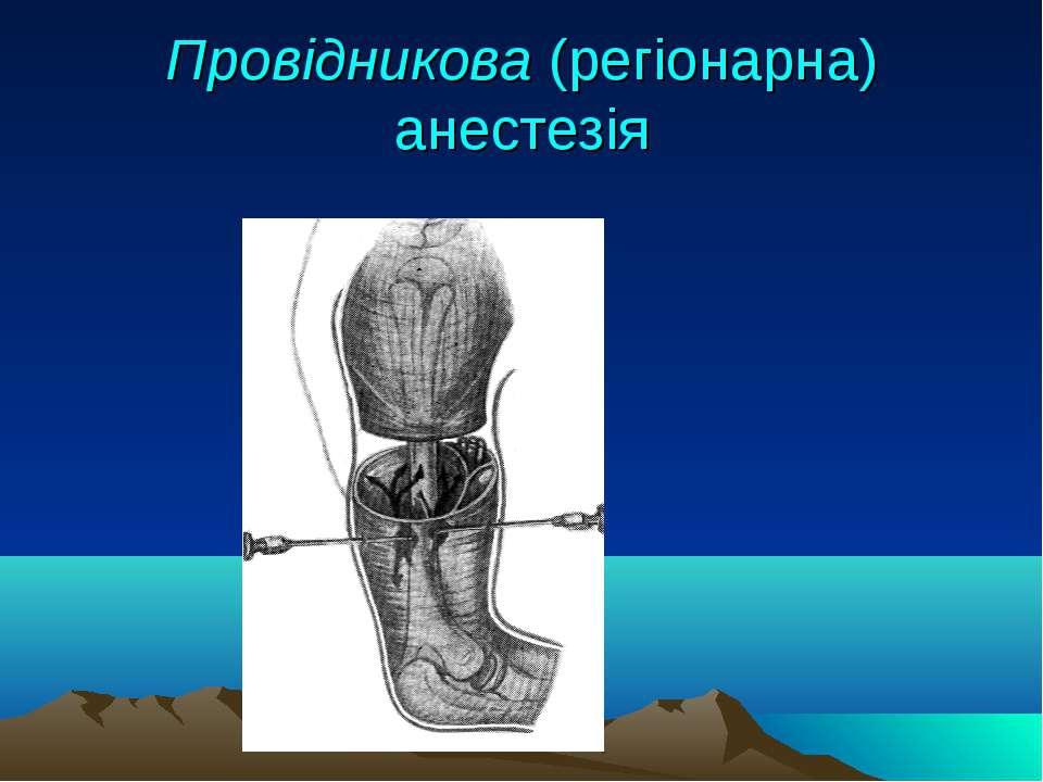 Провідникова (регіонарна) анестезія