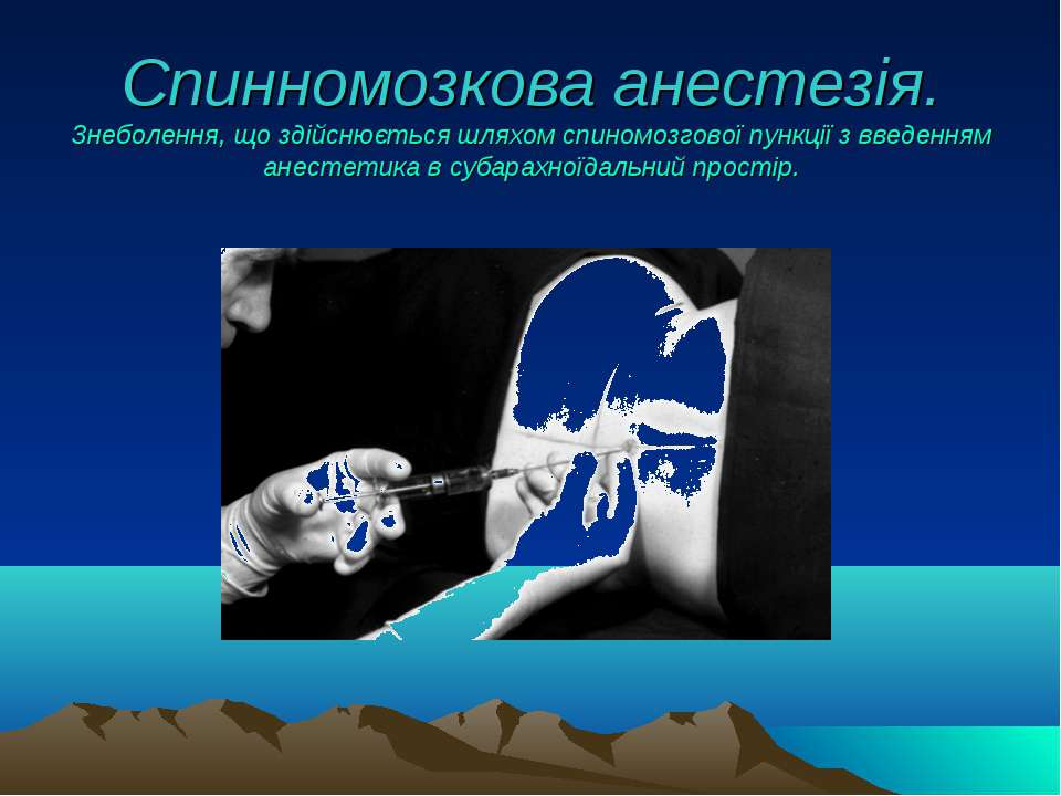 Спинномозкова анестезія. Знеболення, що здійснюється шляхом спиномозгової пун...