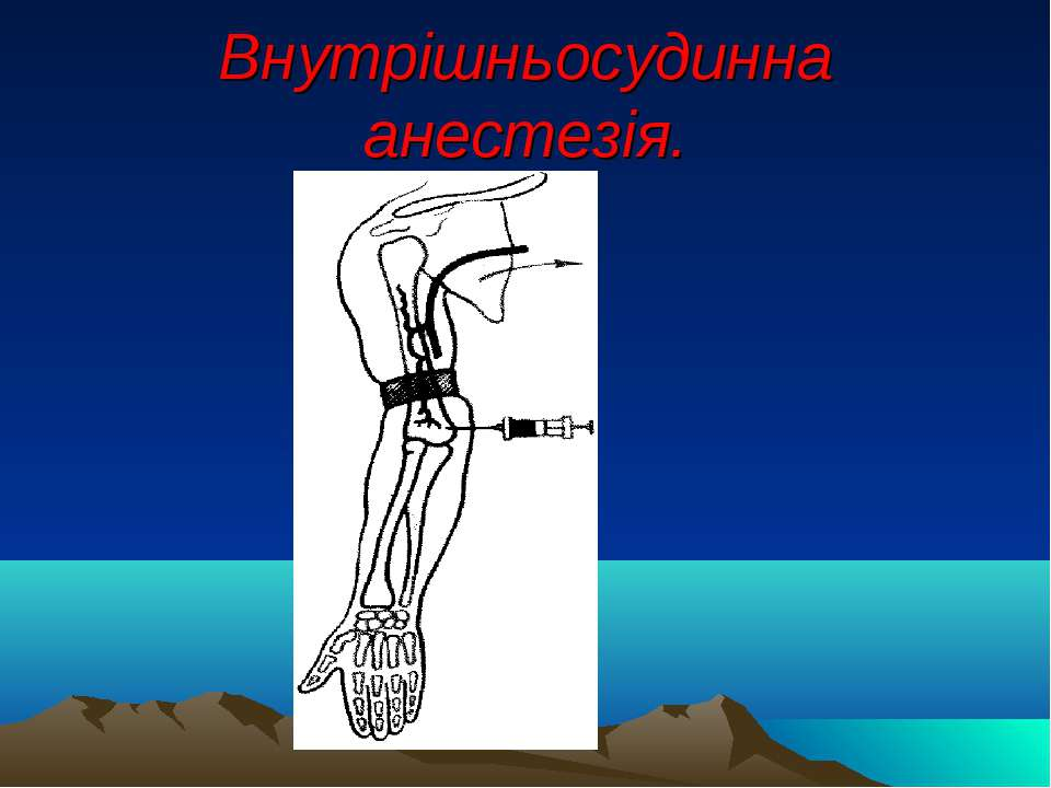 Внутрішньосудинна анестезія.