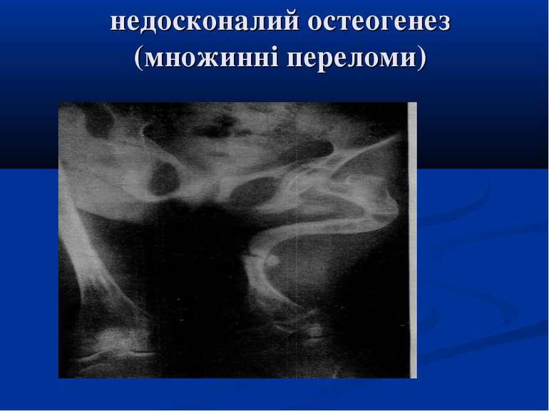недосконалий остеогенез (множинні переломи)