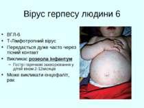 Вірус герпесу людини 6 ВГЛ-6 T-Лімфотропний вірус Передається дуже часто чере...