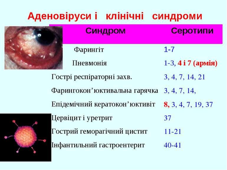 Аденовіруси і клінічні синдроми Синдром Серотипи Фарингіт 1-7 Пневмонія 1-3, ...