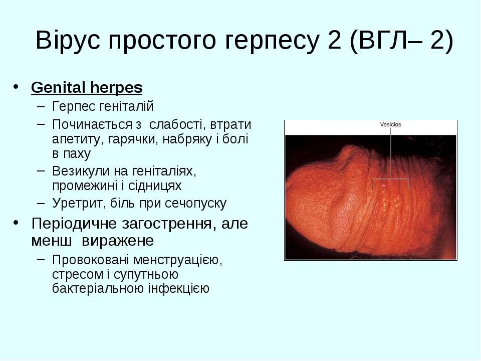 Вірус простого герпесу 2 (ВГЛ– 2) Genital herpes Герпес геніталій Починається...