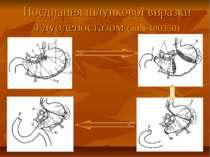 Поєднання шлункової виразки з дуоденостазом (ап№180350)