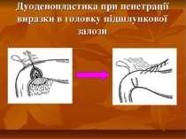 Дуоденопластика при пенетрації виразки в головку підшлункової залози