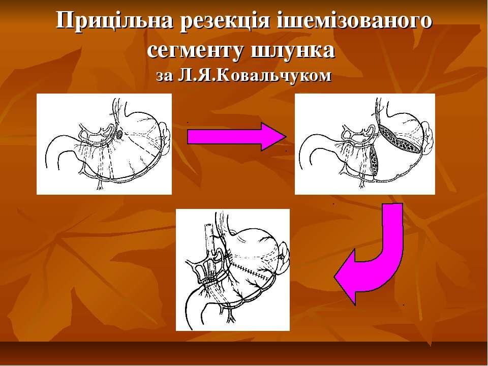 Прицільна резекція ішемізованого сегменту шлунка за Л.Я.Ковальчуком
