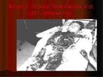 Хворий С., 16 років. Термічний опік IV ст. (55 % поверхні тіла).