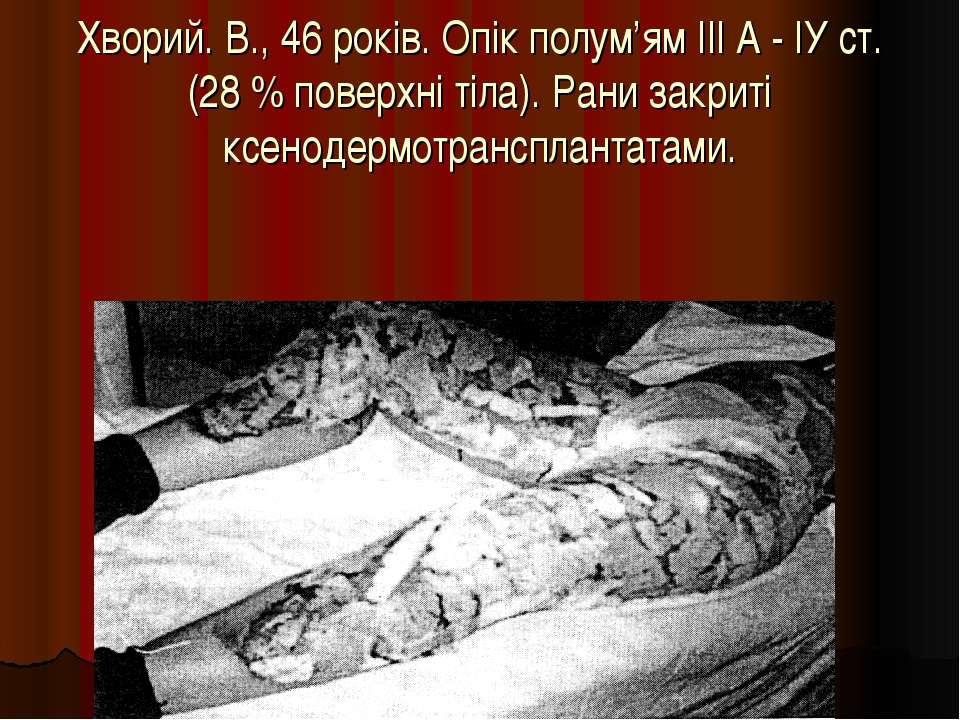 Хворий. В., 46 років. Опік полум'ям ІІІА - ІУ ст. (28% поверхні тіла). Рани...