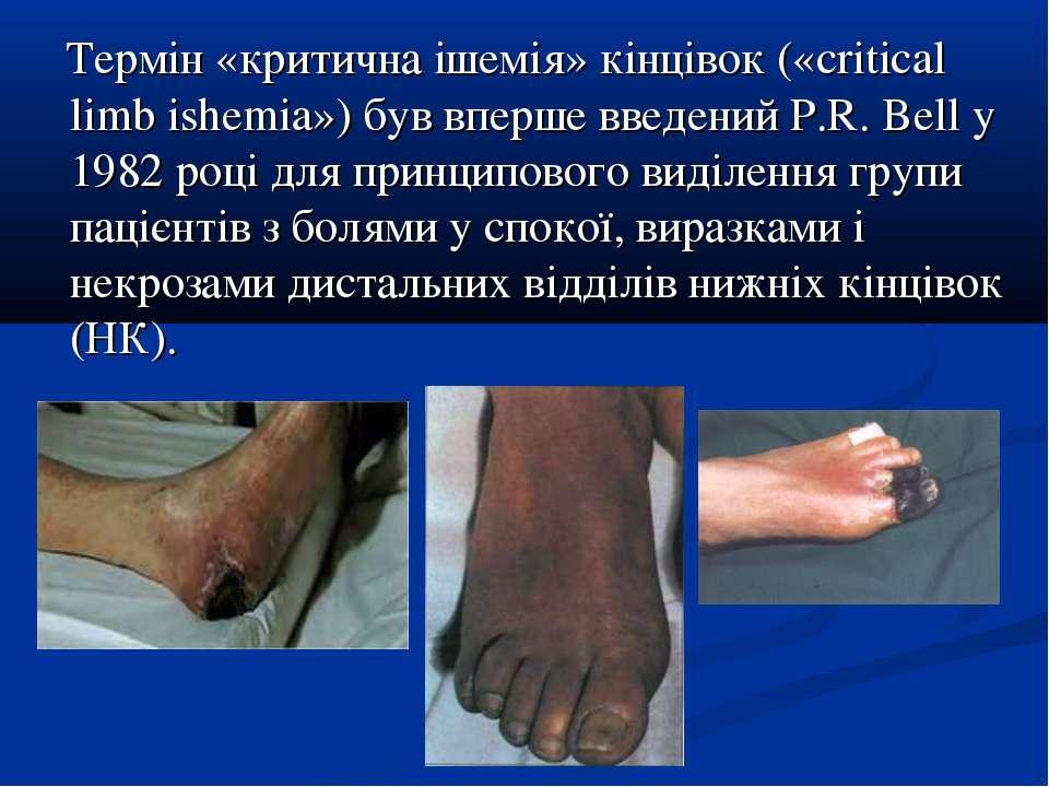 Термін «критична ішемія» кінцівок («critical limb ishemia») був вперше введен...