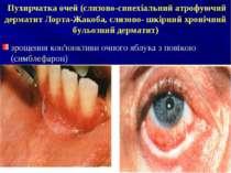 Пухирчатка очей (слизово-синехіальний атрофуючий дерматит Лорта-Жакоба, слизо...