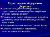Герпетиформний дерматит Дюринга Хронічне рецидивуюче захворювання, характериз...