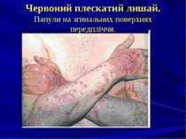 Червоний плескатий лишай. Папули на згинальних поверхнях передпліччя.