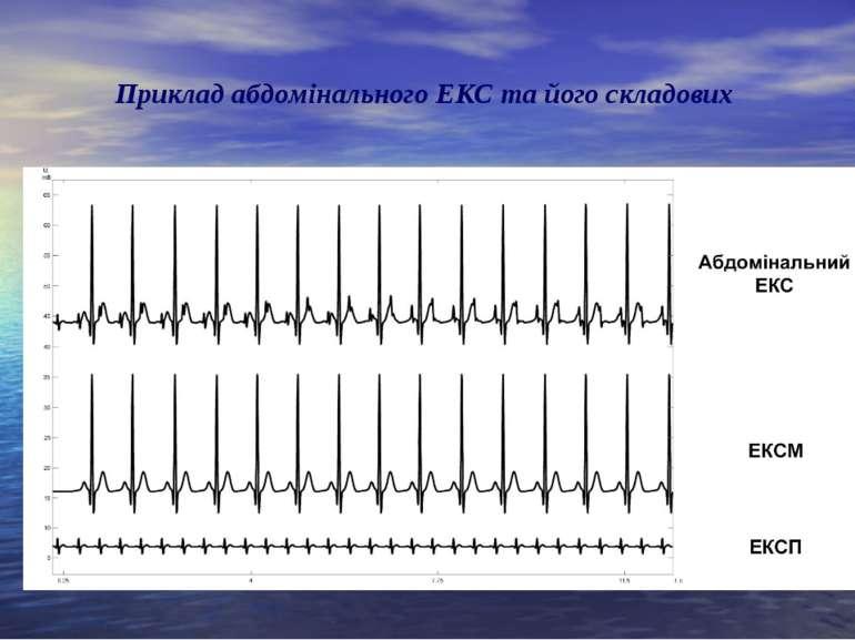 Приклад абдомінального ЕКС та його складових