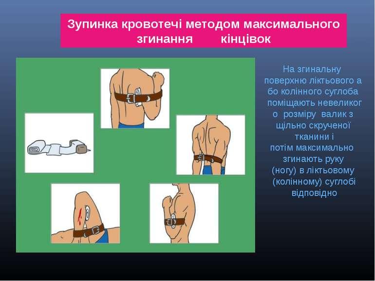 . Зупинкакровотечіметодоммаксимального згинання кінцівок Назгинальну пов...