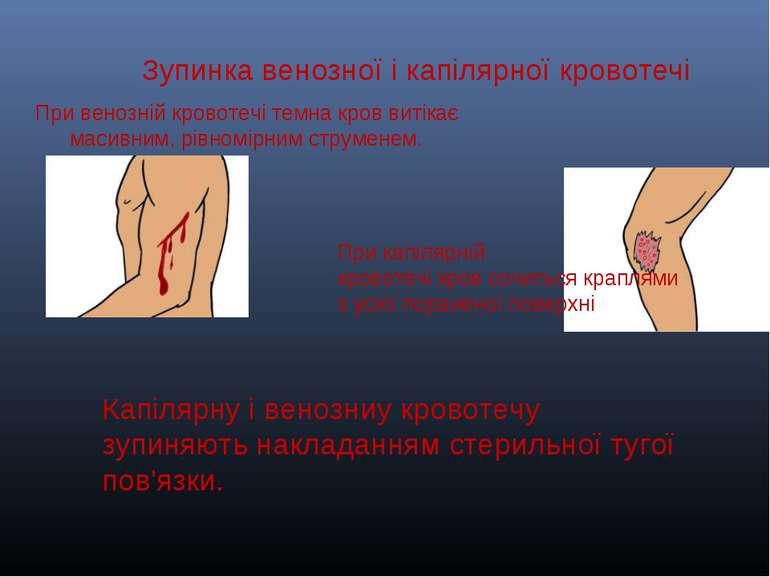 . Зупинкавенозноїі капілярноїкровотечі Привенозній кровотечітемнакровв...