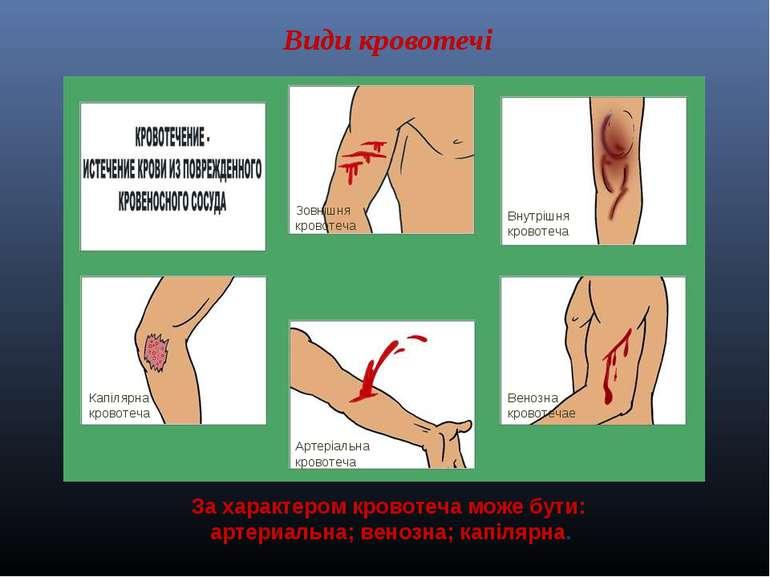 Види кровотечі Артеріальна кровотеча Венозна кровотечае Внутрішня кровотеча К...