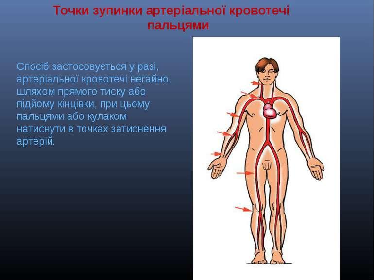 Точкизупинки артеріальноїкровотечі пальцями Спосібзастосовується у разі, ...