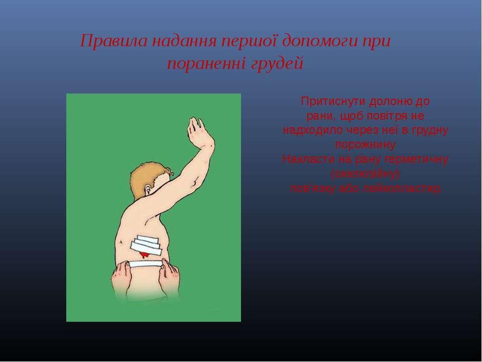 Правила надання першої допомоги при пораненні грудей Притиснутидолонюдо ран...