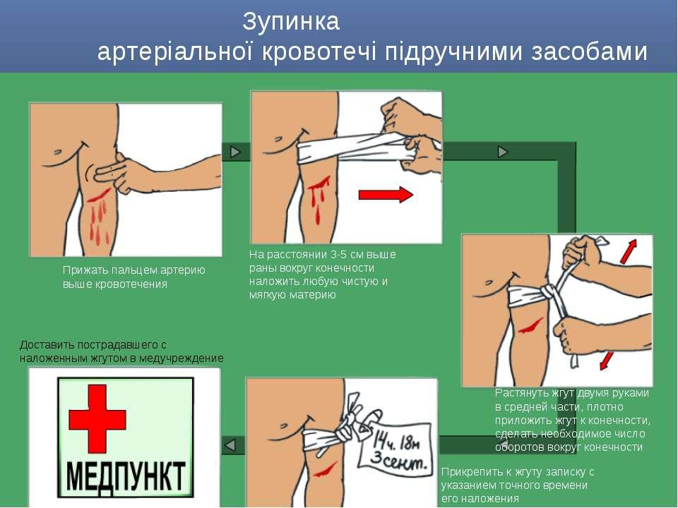 Прижать пальцем артерию выше кровотечения На расстоянии 3-5 см выше раны вокр...