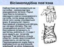 Вісімкоподібна пов'язка Найчастіше застосовується на суглобах , наприклад при...
