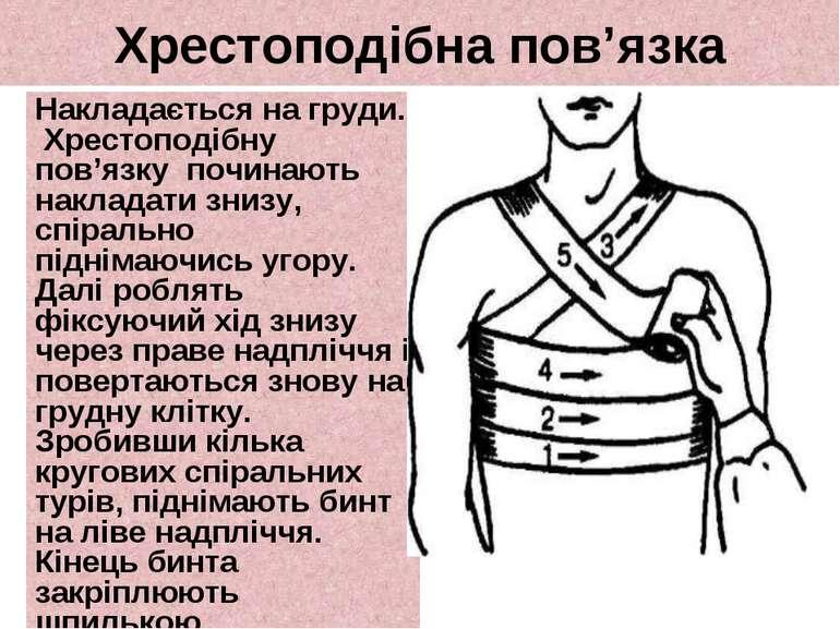 Хрестоподібнапов'язка Накладається на груди. Хрестоподібну пов'язку починаю...