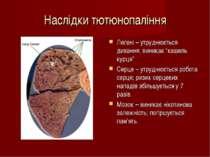"""Наслідки тютюнопаління Легені – утруднюється дихання; виникає """"кашель курця"""" ..."""