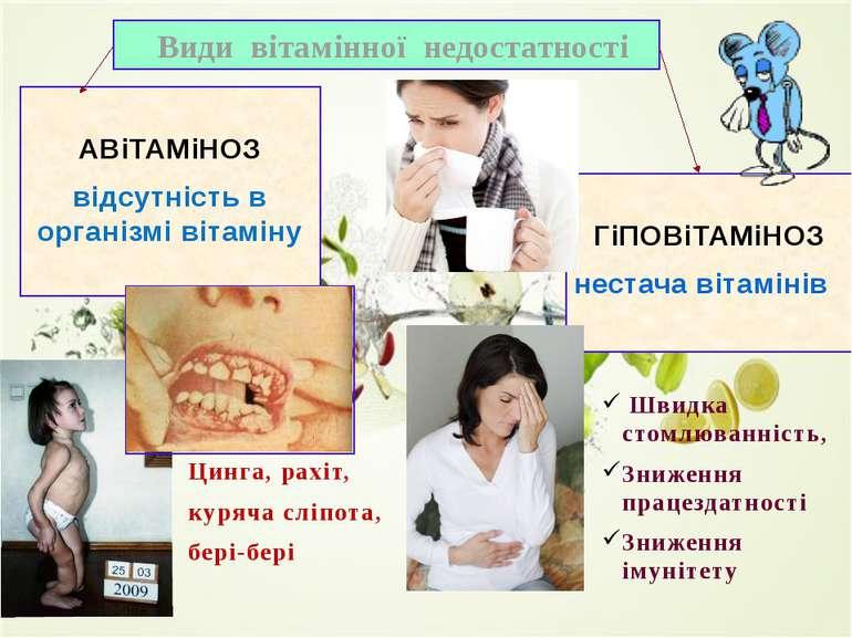 Види вітамінної недостатності АВіТАМіНОЗ відсутність в організмі вітаміну ГіП...