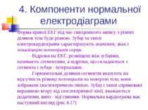 4. Компоненти нормальної електродіаграми Форма кривої ЕКГ під час синхронного...