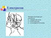 Електросон Фіксація електродів для електросну: а – середня манжетка б - очний...