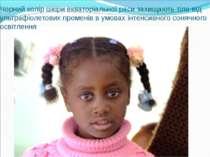 Чорний колір шкіри екваторіальної раси захищають тіло від ультрафіолетових пр...
