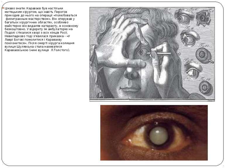Цікаво знати: Караваєв був настільки митецьким хірургом, що навіть Пирогов пр...