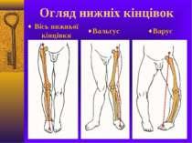 Огляд нижніх кінцівок Вісь нижньої кінцівки Вальгус Варус