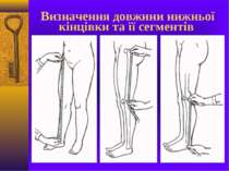 Визначення довжини нижньої кінцівки та її сегментів