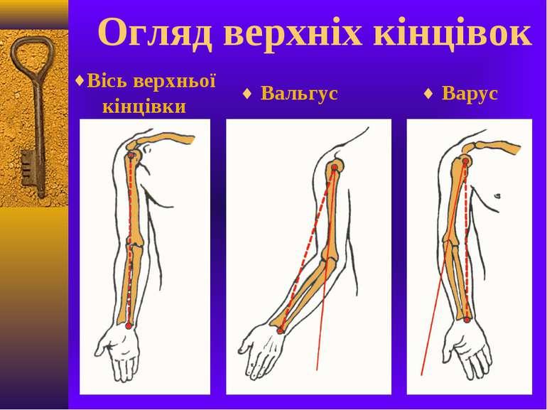Огляд верхніх кінцівок Вальгус Варус Вісь верхньої кінцівки