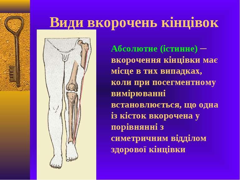 Види вкорочень кінцівок Абсолютне (істинне) ─ вкорочення кінцівки має місце в...