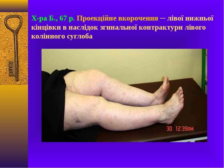 Х-ра Б., 67 р. Проекційне вкорочення ─ лівої нижньої кінцівки в наслідок згин...