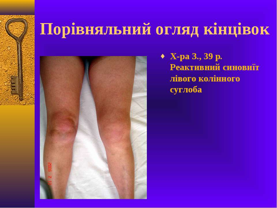 Порівняльний огляд кінцівок Х-ра З., 39 р. Реактивний синовиїт лівого колінно...