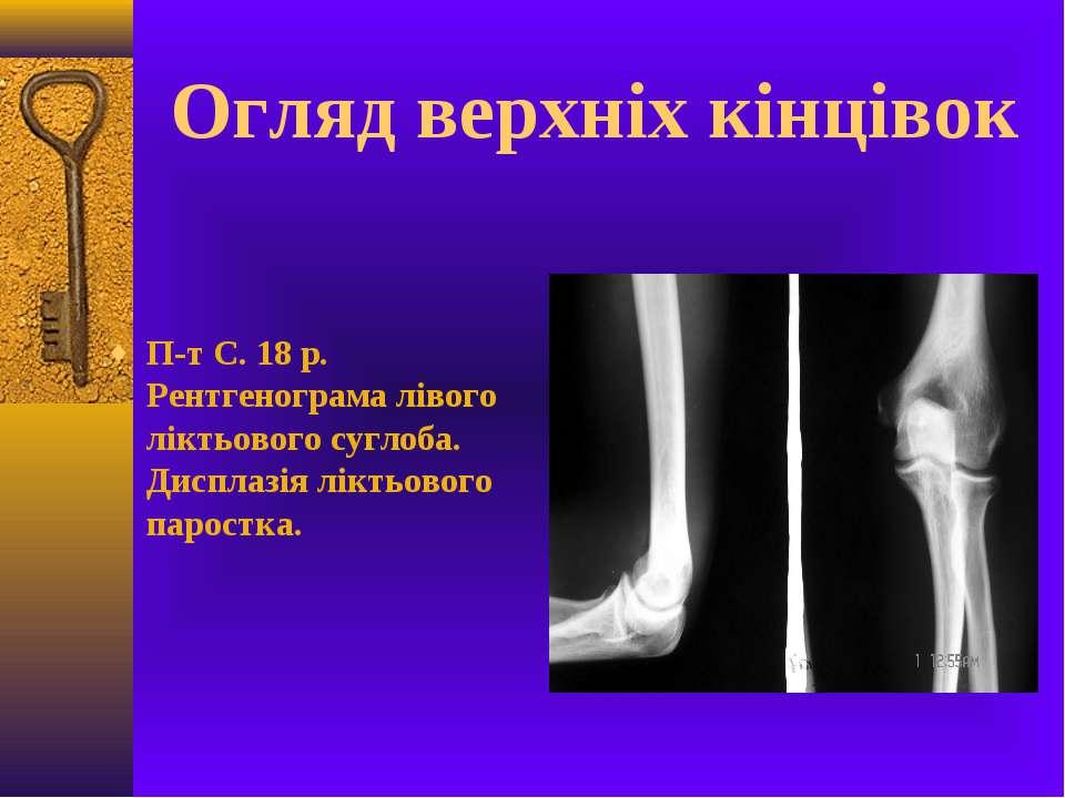 Огляд верхніх кінцівок П-т С. 18 р. Рентгенограма лівого ліктьового суглоба. ...