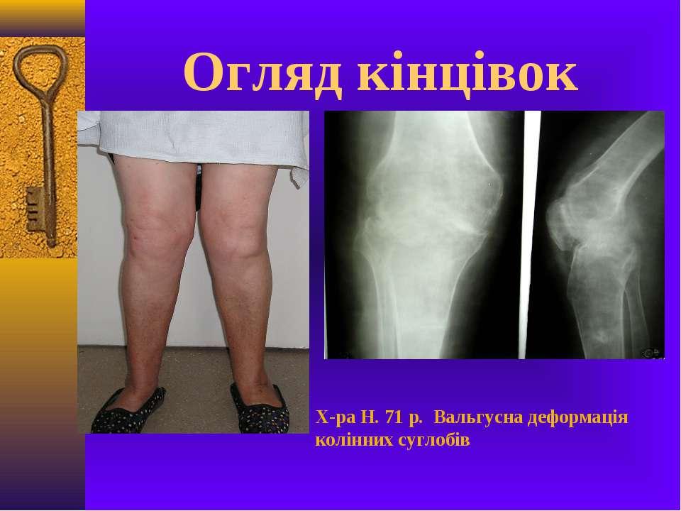 Огляд кінцівок Х-ра Н. 71 р. Вальгусна деформація колінних суглобів