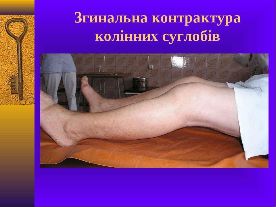 Згинальна контрактура колінних суглобів