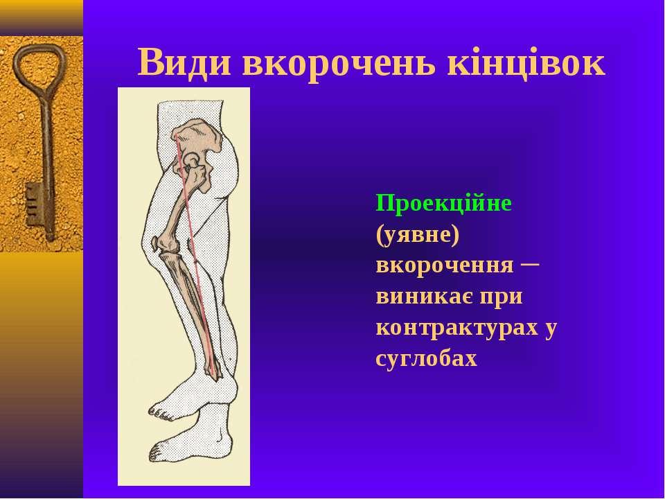 Види вкорочень кінцівок Проекційне (уявне) вкорочення ─ виникає при контракту...
