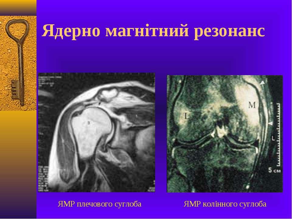 Ядерно магнітний резонанс ЯМР плечового суглоба ЯМР колінного суглоба