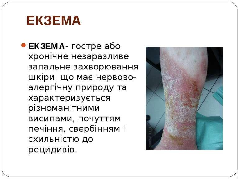 ЕКЗЕМА ЕКЗЕМА- гостре або хронічне незаразливе запальне захворювання шкіри, щ...