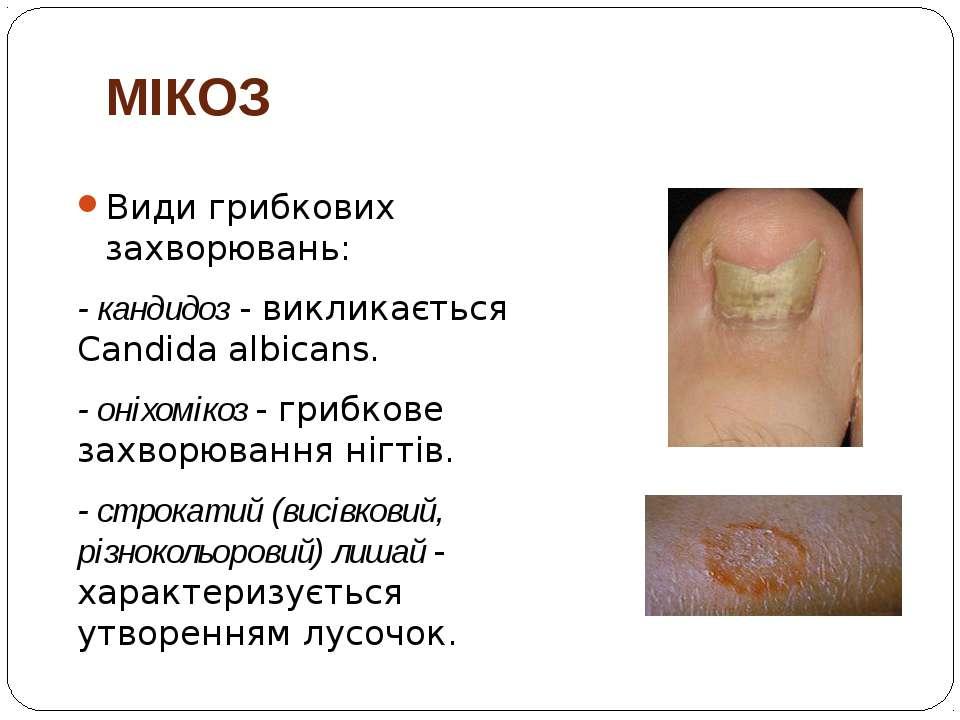 МІКОЗ Види грибкових захворювань: - кандидоз - викликається Candida albicans....