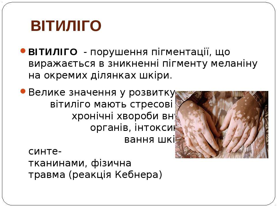 ВІТИЛІГО ВІТИЛІГО - порушення пігментації, що виражається в зникненні пігмент...