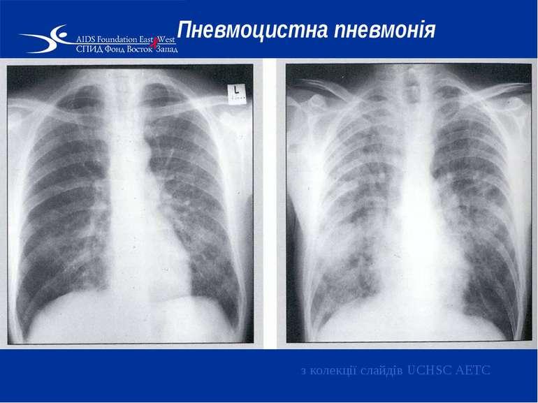 Пневмоцистна пневмонія з колекції слайдів UCHSC AETC