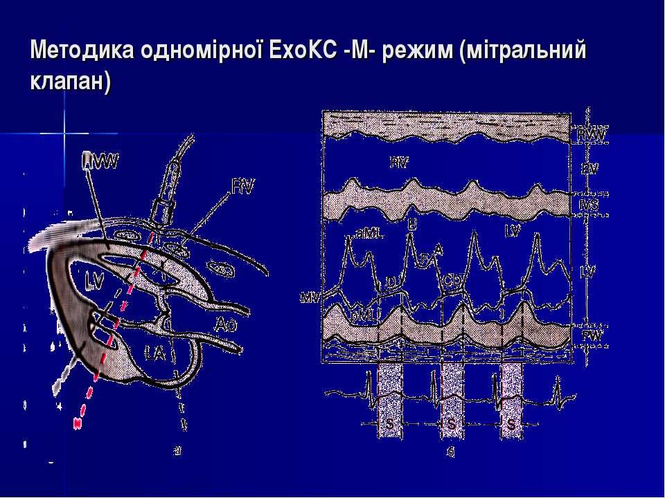 Методика одномірної ЕхоКС -М- режим (мітральний клапан)