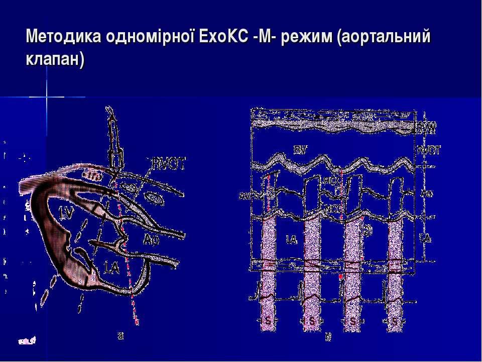 Методика одномірної ЕхоКС -М- режим (аортальний клапан)