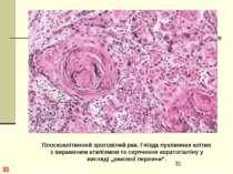* Плоскоклітинний зроговілий рак. Гнізда пухлинних клітин з вираженим атипізм...